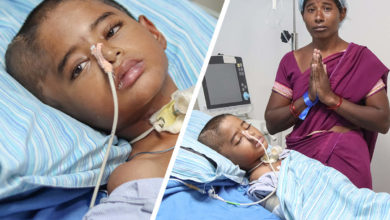 Photo of ADVT: Your kindness is the only way to save a 10-year-old boy suffering from a fatal brain infection and severe covid infection.