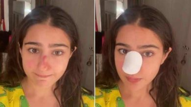 Photo of What happened to Sara Ali Khan's nose?  Apologies to parents for sharing the video